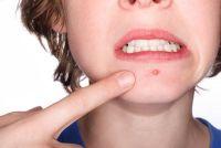 Hoe kan ik acne littekens verwijderen?
