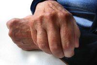Rimpelige huid op de handen - maatregelen te nemen tegen