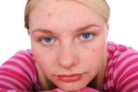 Fight acne - zodat u uw teint te verbeteren