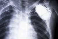 Pacemaker - over vervangende batterij