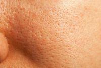 Grote poriën gezichtshuid - huidverzorging