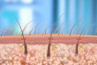 Haarfollikel ontstekingen - die je kunt doen