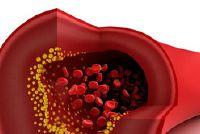 Niet genoeg zuurstof in het bloed?  - De bloedarmoede door ijzertekort duidelijk uitgelegd