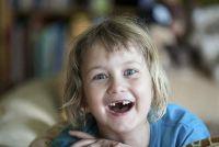 Hoeveel kost een complete set van tanden?  - Dus u goed te berekenen