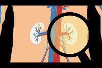 Nieren flush - zodat je met huismiddeltjes de activiteit van uw nieren te stimuleren