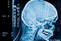 Onze hersenen - Ontdek de structuur van de menselijke hersenen