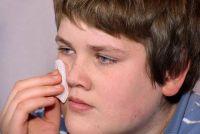 Deal effectief met huismiddeltjes - Herpes in de mond
