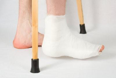 Ankle ontsteking - met huismiddeltjes verlichten van de pijn