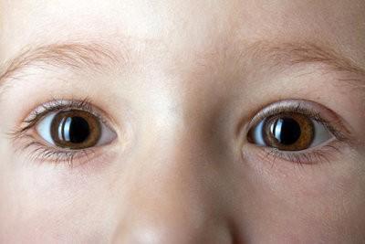 Twee kleuren ogen - dus je ermee om