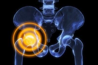 Wat kan ik doen om adductor pijn?