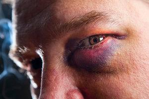 Wat helpt tegen een blauw oog?